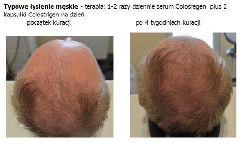 Preparat nadaje się do walki z typowym łysieniem zarówno u mężczyzn jak i u kobiet