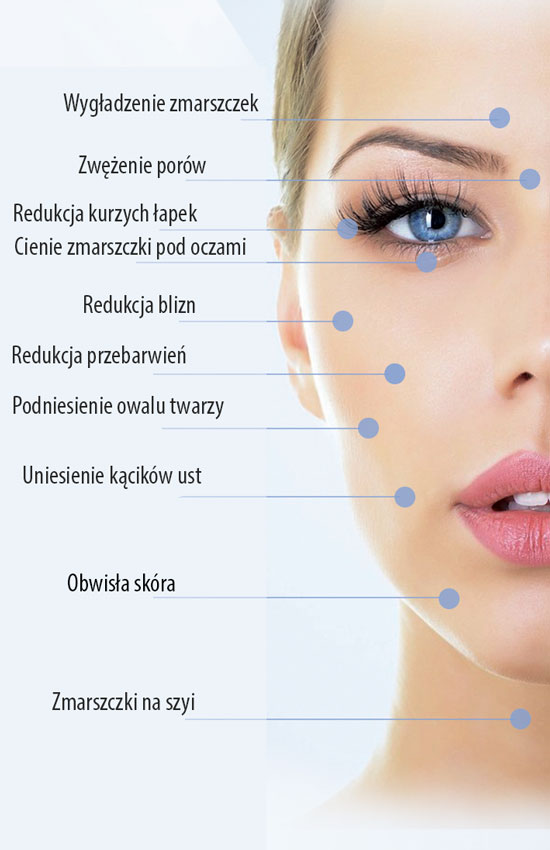 Rezultatem zabiegu jest silna poprawa owalu twarzy