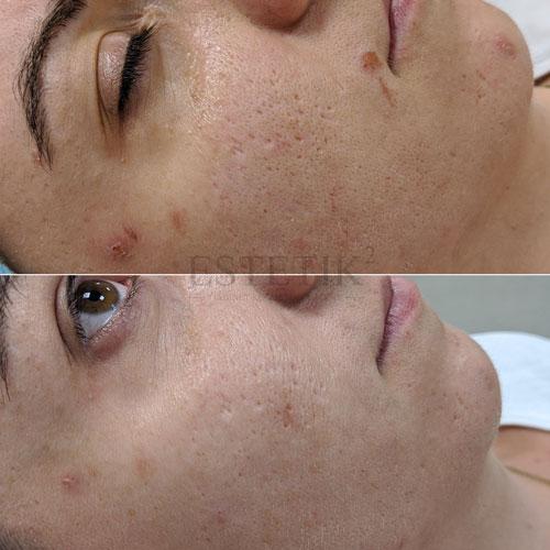 Efekt po jednym zabiegu mezoterapii mikroigłowej Dermo Penem Q1