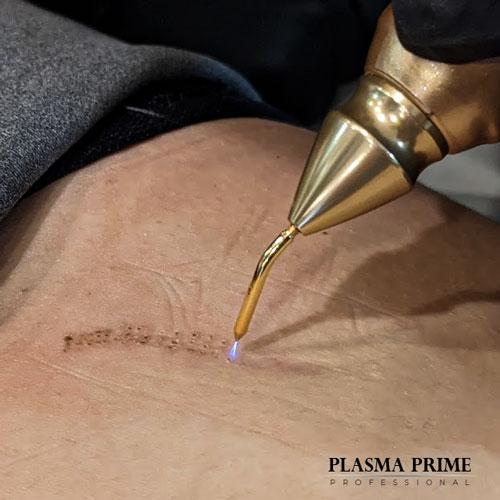 Kompaktowy generator plazmy przeznaczony wyłącznie do użytku kosmetologicznego