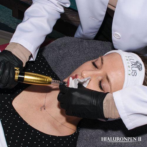 Za pomocą profesjonalnej strzykawki bez igły można wprowadzić dowolny kwas hialuronowy usieciowany lub nieusieciowany