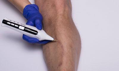 Usuwanie płytkich tatuaży i makijażu permanentnego za pomocą Plasma Pen V1
