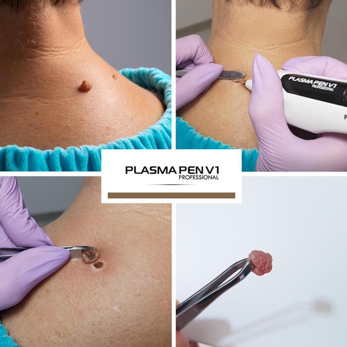 Urządzenie można stosować także na trudno dostępnych partiach ciała, takich jak okolice oczu