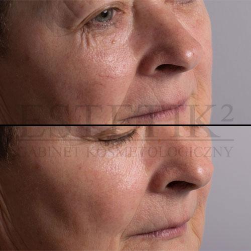 Sprzęt kosmetyczny zapewnia pewność pracy i niezawodność w każdych warunkach
