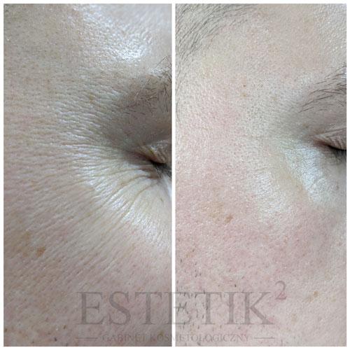 NeeRevive zapewnia skuteczną redukcję zmarszczek i poprawia owal twarzy