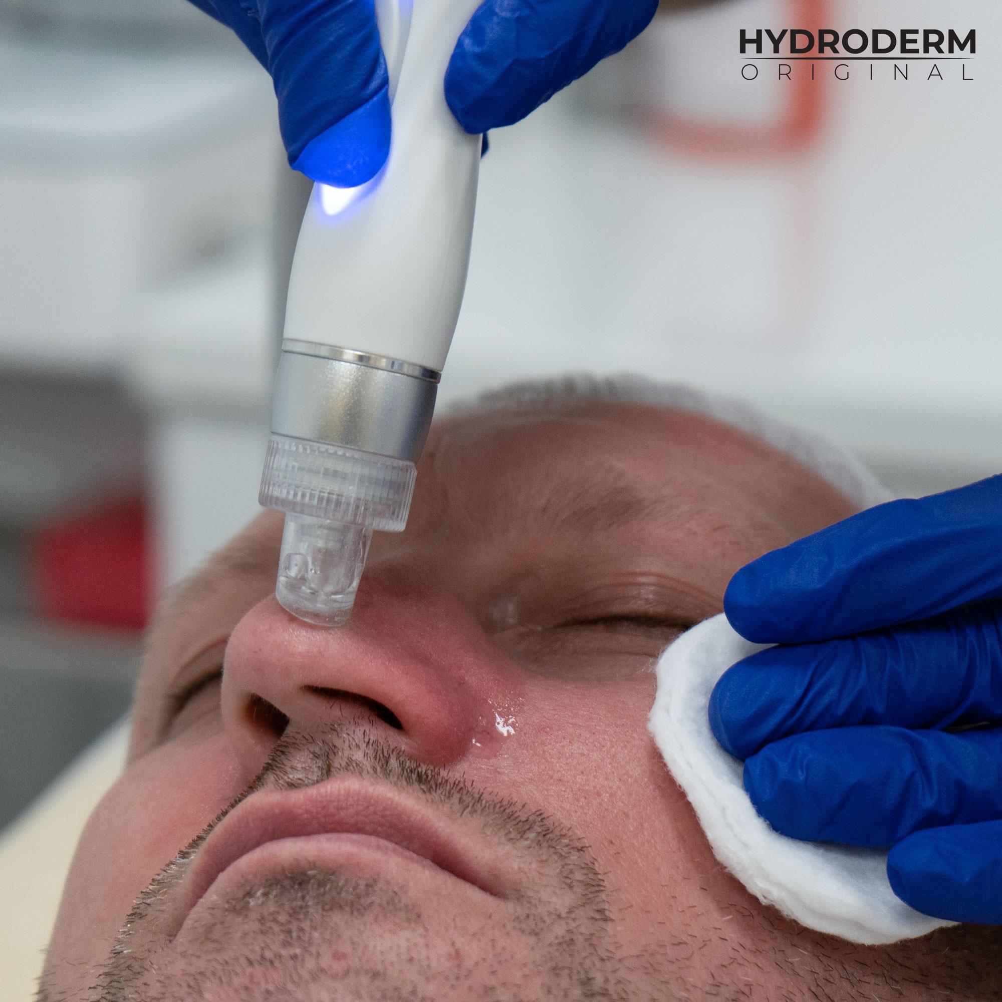 Po złuszczeniu martwego naskórka przy użyciu wodoru, uzyskasz gładką i nieskazitelnie czystą skórę