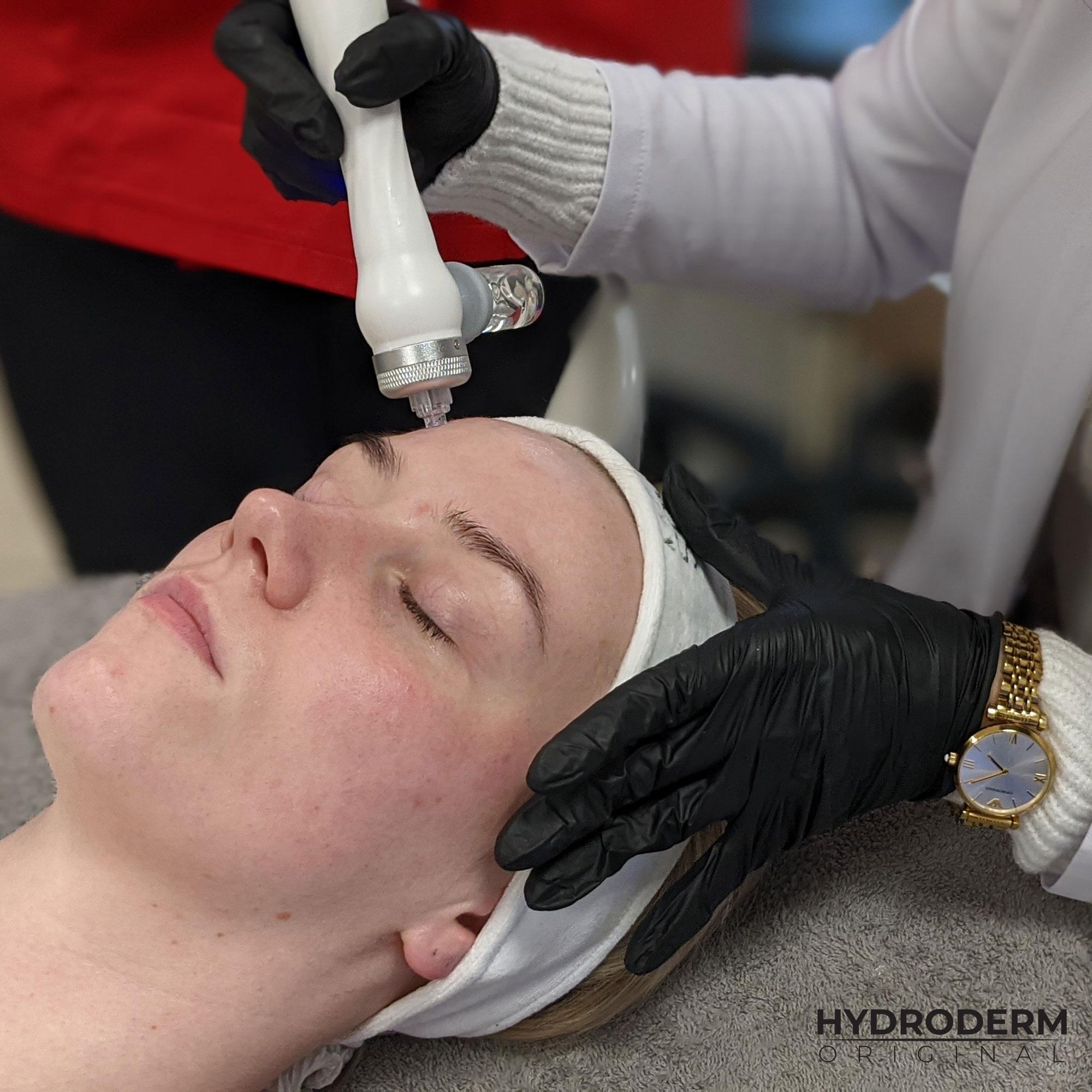 Podczas infuzji wodorowej wprowadzamy w głąb skóry składniki aktywne, które odżywiają właściwe warstwy naskórka