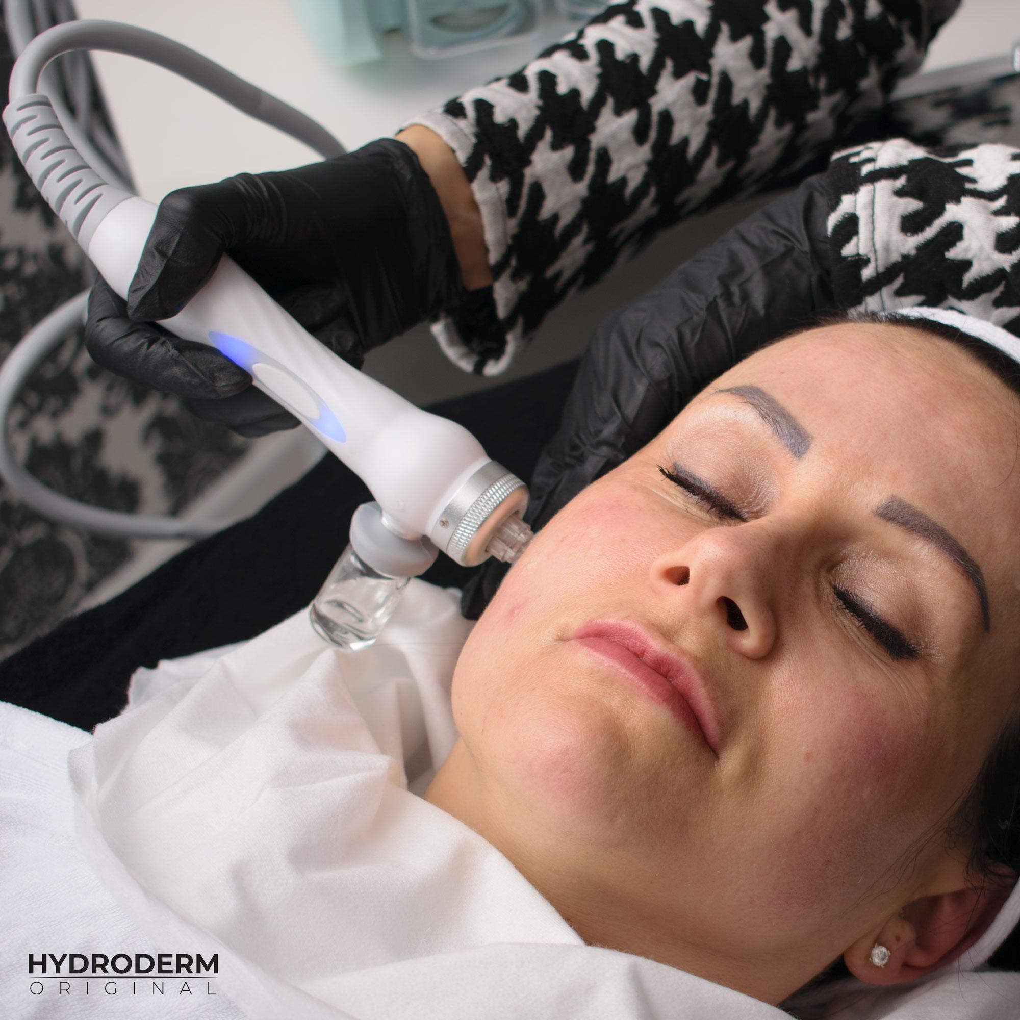 Czy zabieg infuzji tlenowej urządzeniem Hydroderm także jest szczegółowo wytłumaczony?