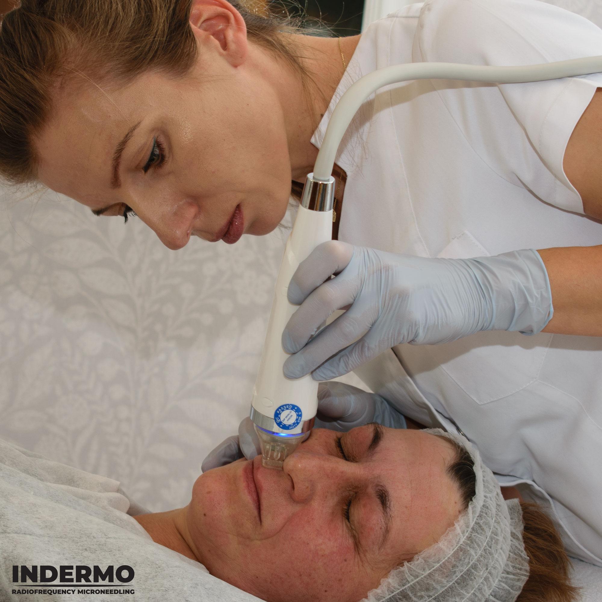 Za pomocą maszyny Indermo Radiofrequency Microeedling można wykonać bezpieczny zabieg na twarzy