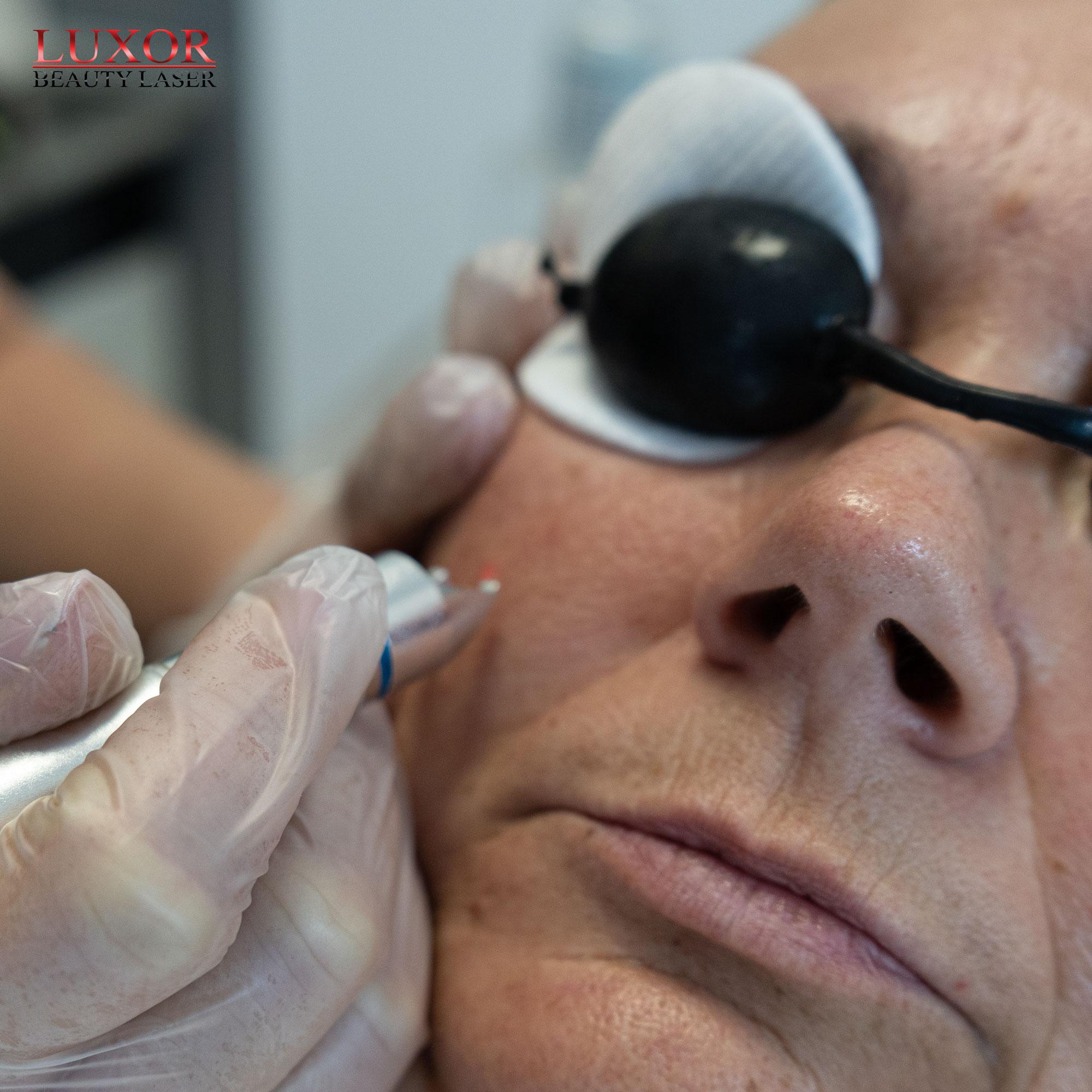 Jak zamknąć naczynia krwionośne na twarzy?