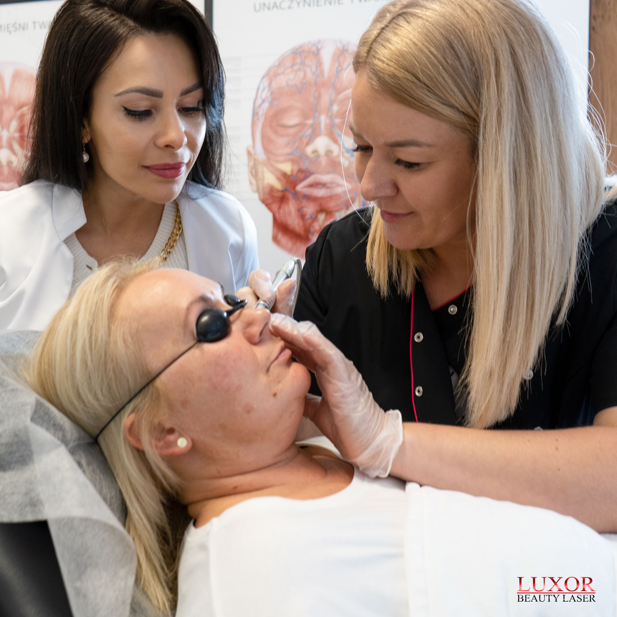 Po terapii można zauważyć natychmiastowy efekt naświetlania skóry laserem