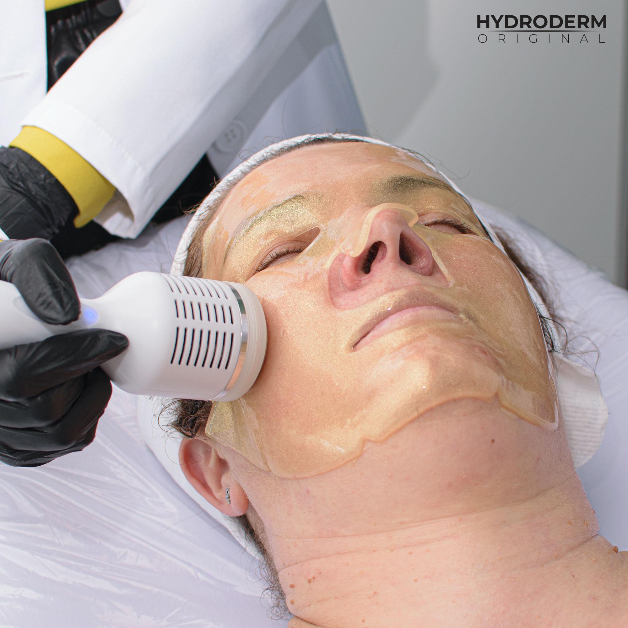 Mezoterapia bezigłowa z użyciem ultradźwięków dla skóry głowy