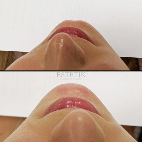 Przykład efektów wolumetrii brody metodą bezigłową