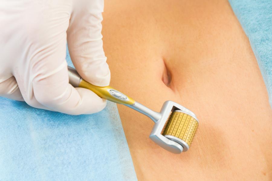 Przy stosowaniu Derma Rollera można używać preparaty witaminowe